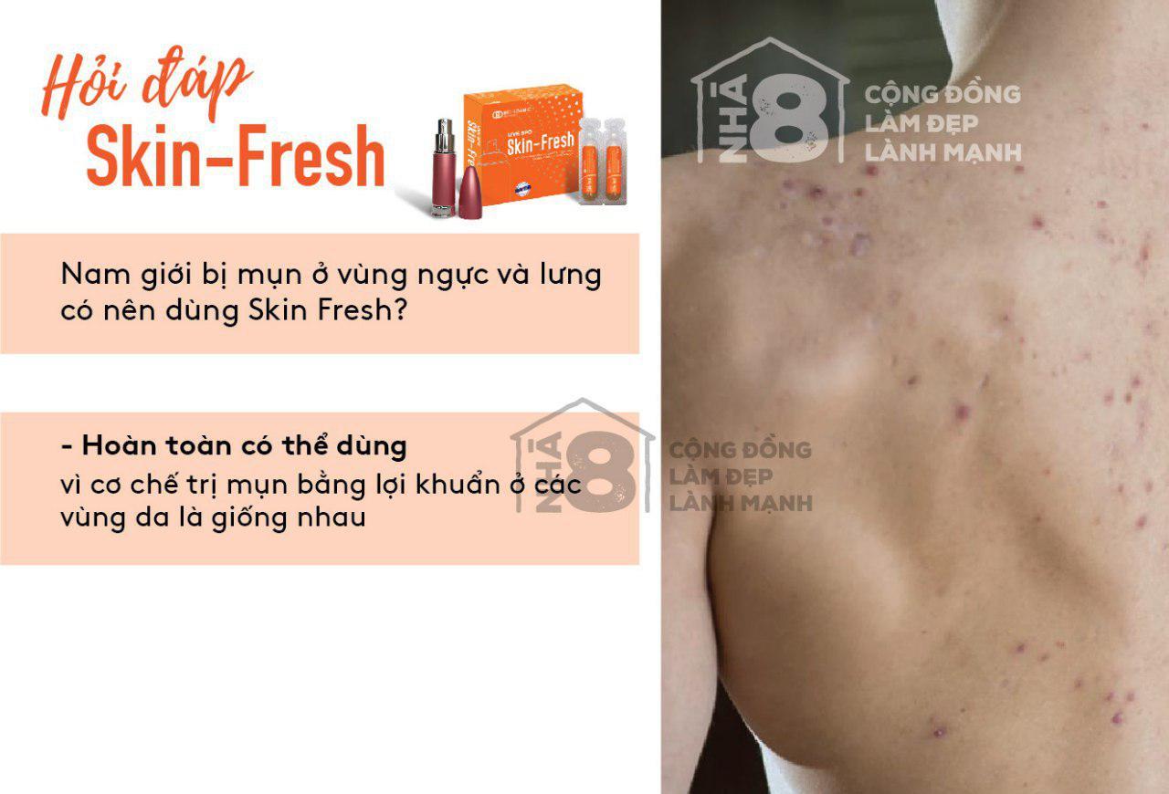 Nam giới bị mụn ngực và lưng có dùng Skin Fresh được không??