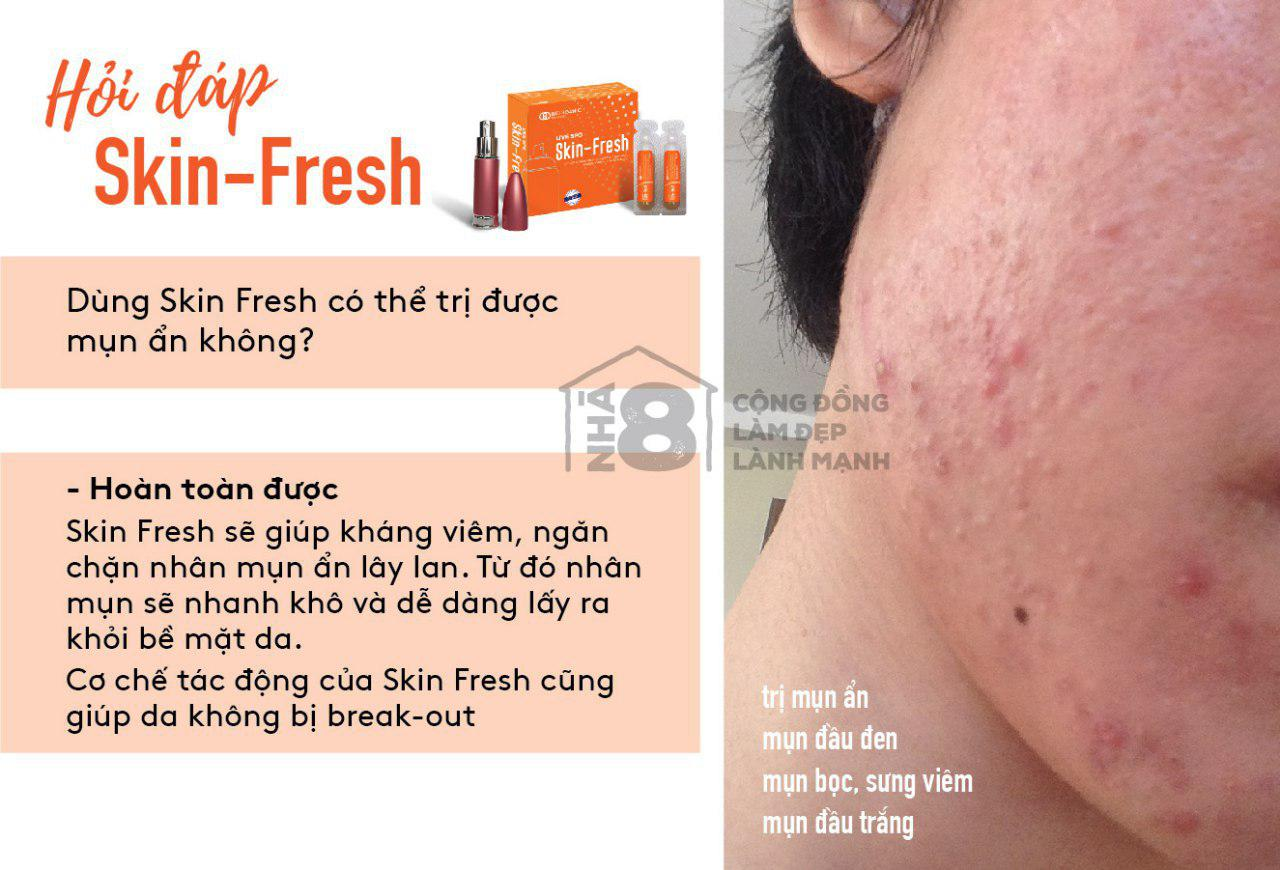 Trị mụn ẩn với Skin Fresh được không?